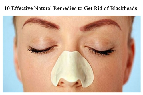 naturals remedies to get rid of blackheads